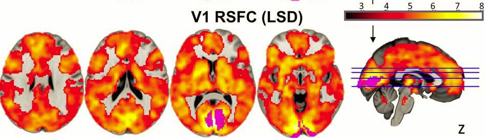 This is your brain on drugs. Many questions!